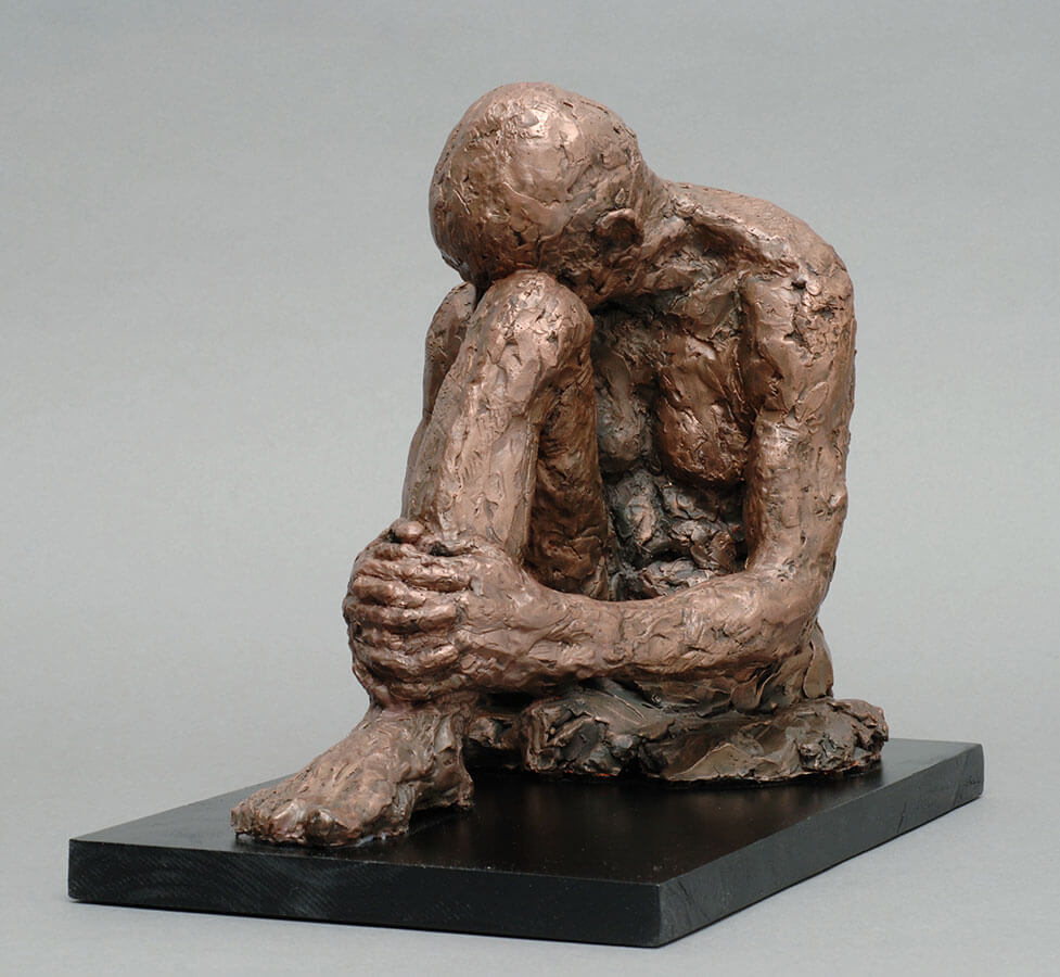 Male seated figure hugging his only leg in cast resin by William Casper.